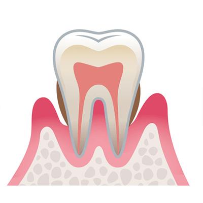 歯周炎(中等度)